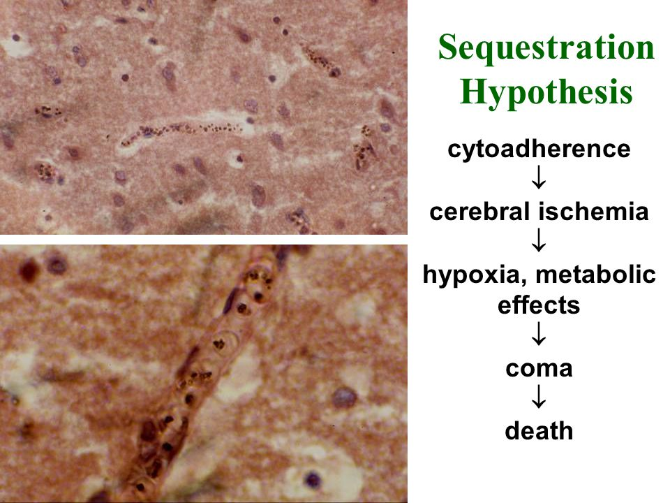 hypoxia, metabolic effects