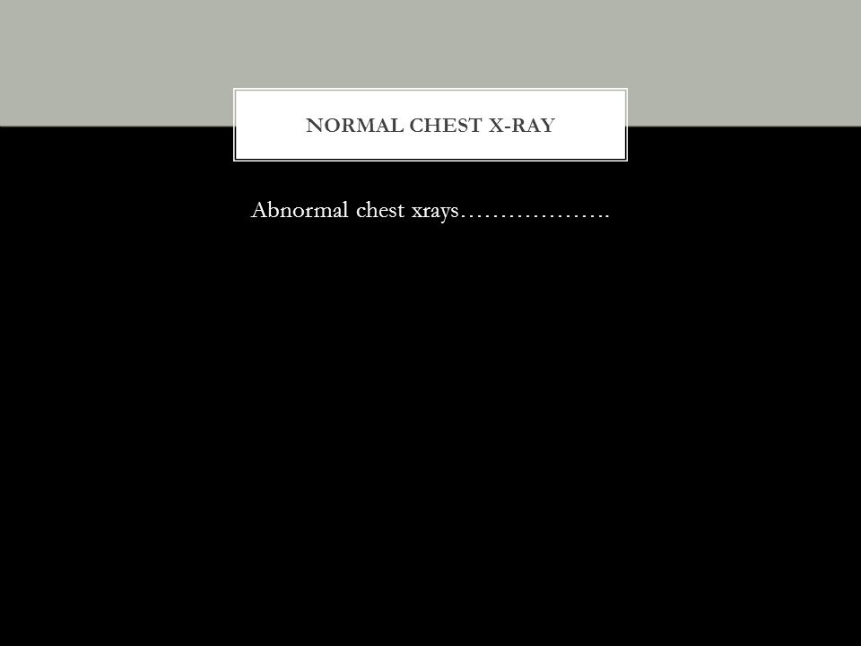 Abnormal chest xrays……………….