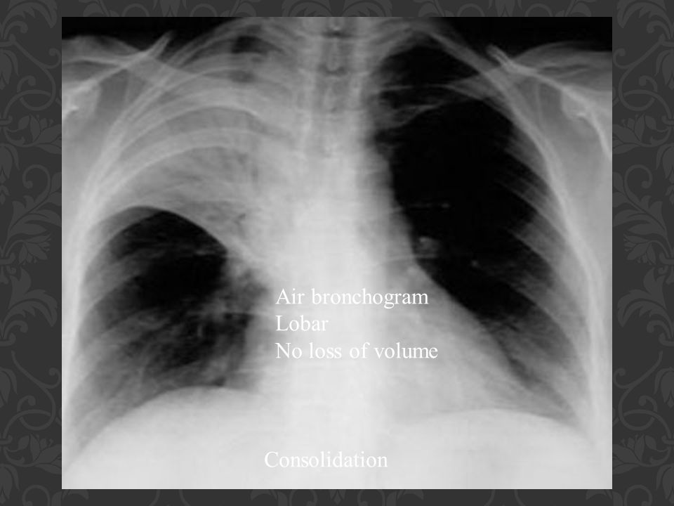 Air bronchogram Lobar No loss of volume Consolidation