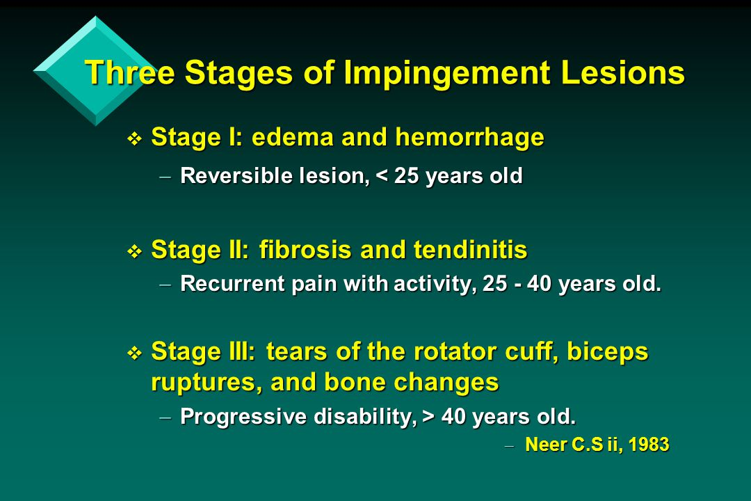 Three Stages of Impingement Lesions