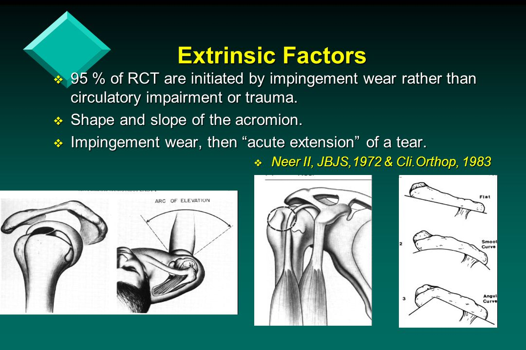 Extrinsic Factors 95 % of RCT are initiated by impingement wear rather than circulatory impairment or trauma.