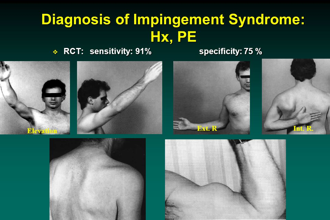 Diagnosis of Impingement Syndrome: Hx, PE