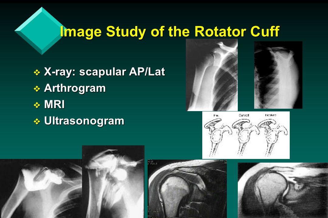 Image Study of the Rotator Cuff