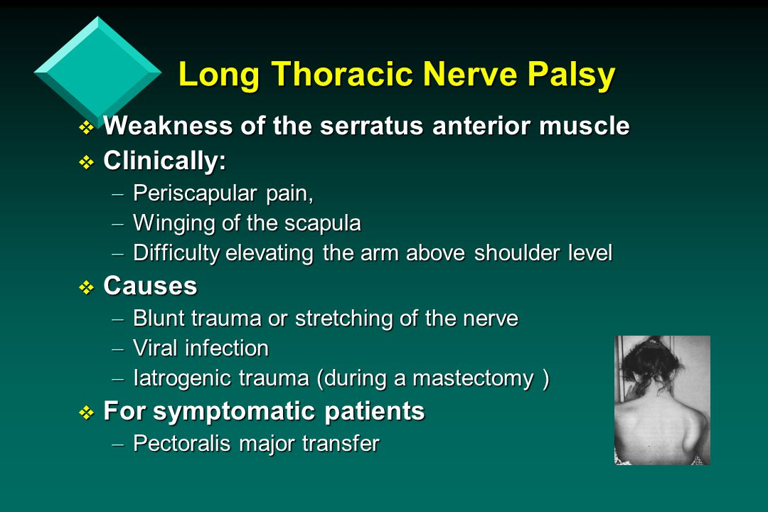 Long Thoracic Nerve Palsy