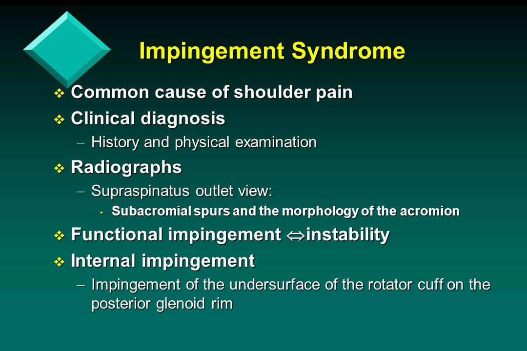 Impingement Syndrome Common cause of shoulder pain Clinical diagnosis