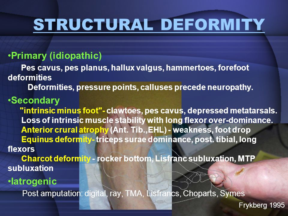 STRUCTURAL DEFORMITY
