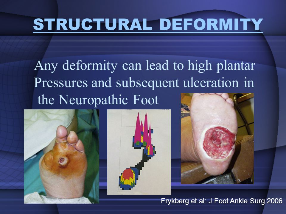 STRUCTURAL DEFORMITY Any deformity can lead to high plantar
