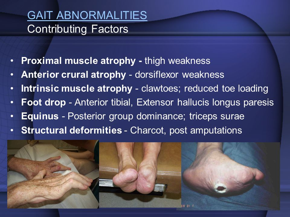 GAIT ABNORMALITIES Contributing Factors