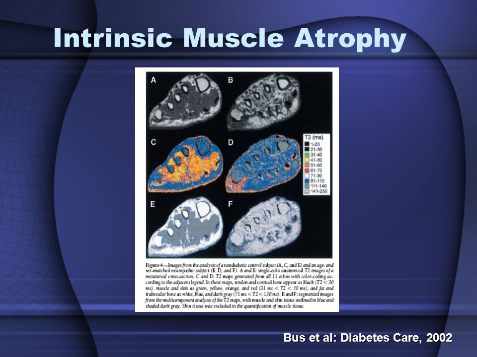 Intrinsic Muscle Atrophy