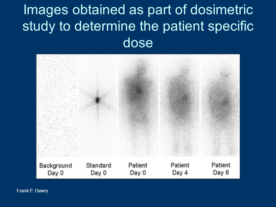 Images obtained as part of dosimetric study to determine the patient specific dose