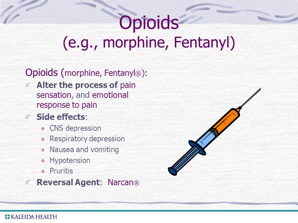 Opioids (e.g., morphine, Fentanyl)
