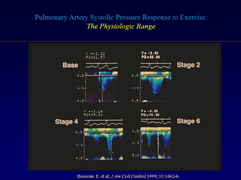 Pulmonary Artery Systolic Pressure Response to Exercise: