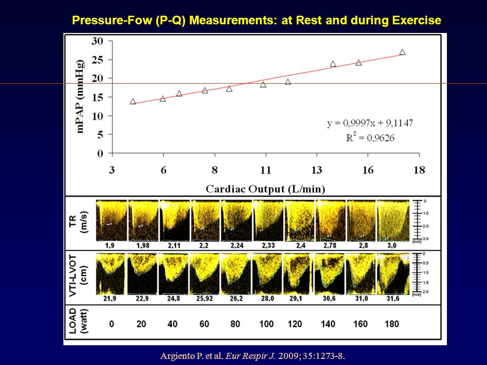Pressure-Fow (P-Q) Measurements: at Rest and during Exercise