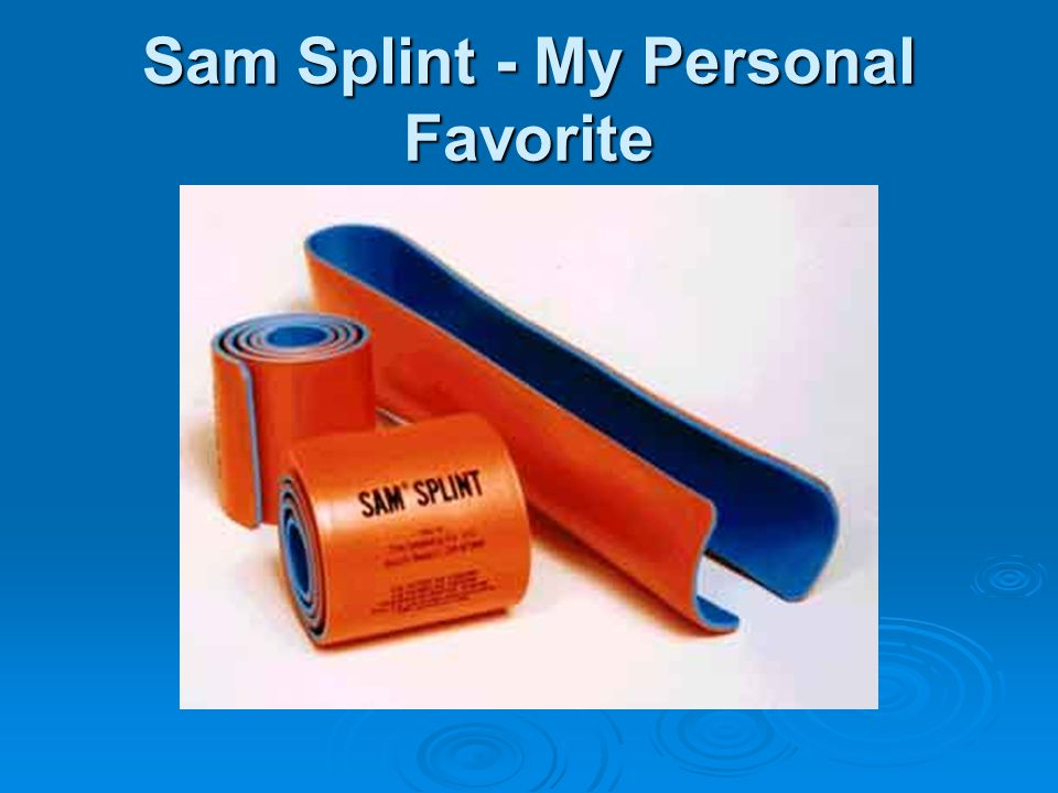 Sam Splint - My Personal Favorite