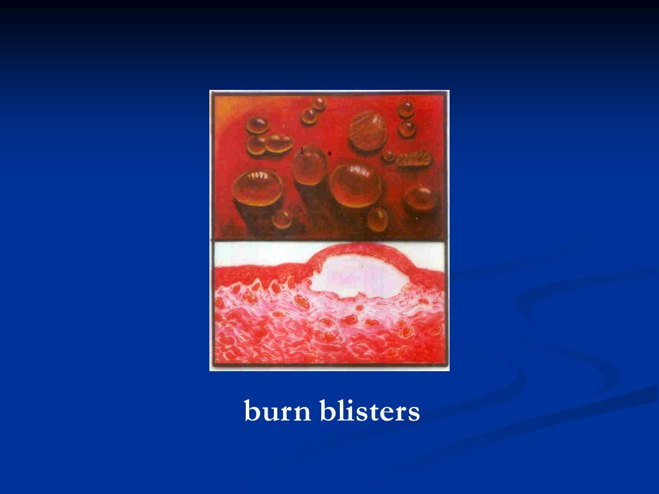 burn blisters