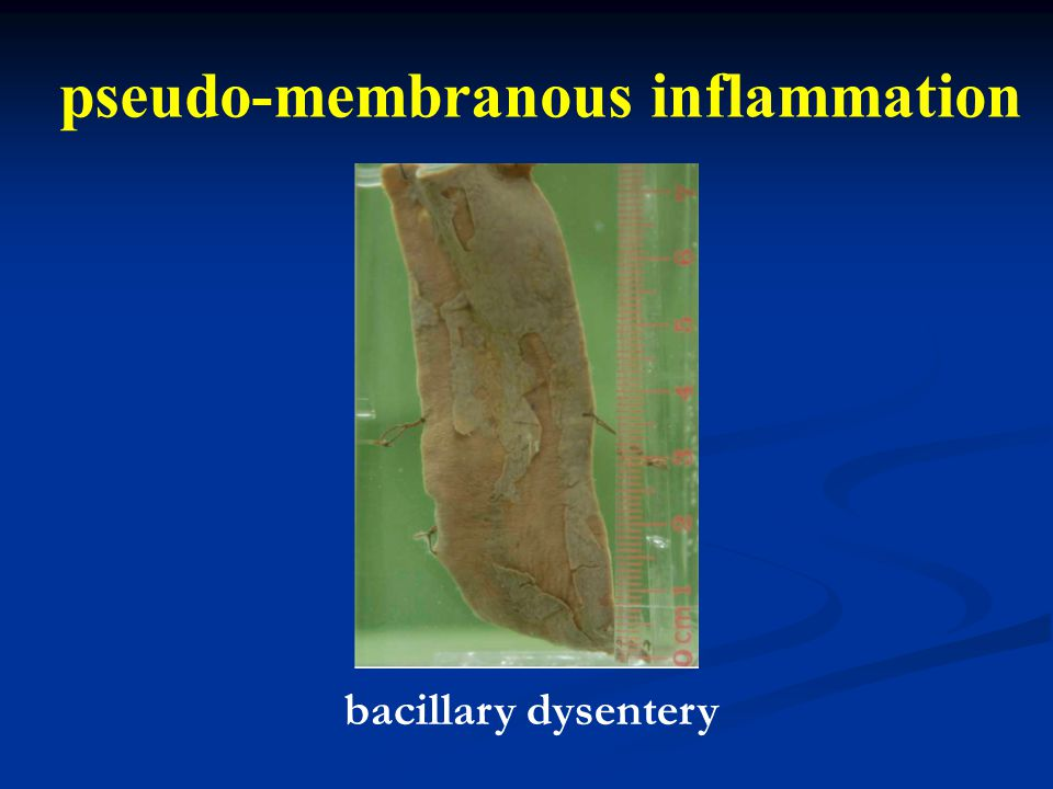 pseudo-membranous inflammation