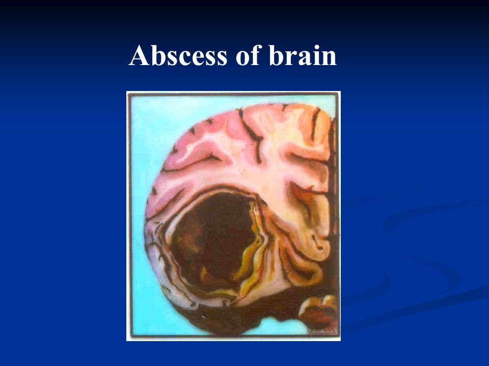 Abscess of brain