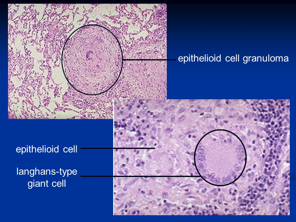 epithelioid cell granuloma