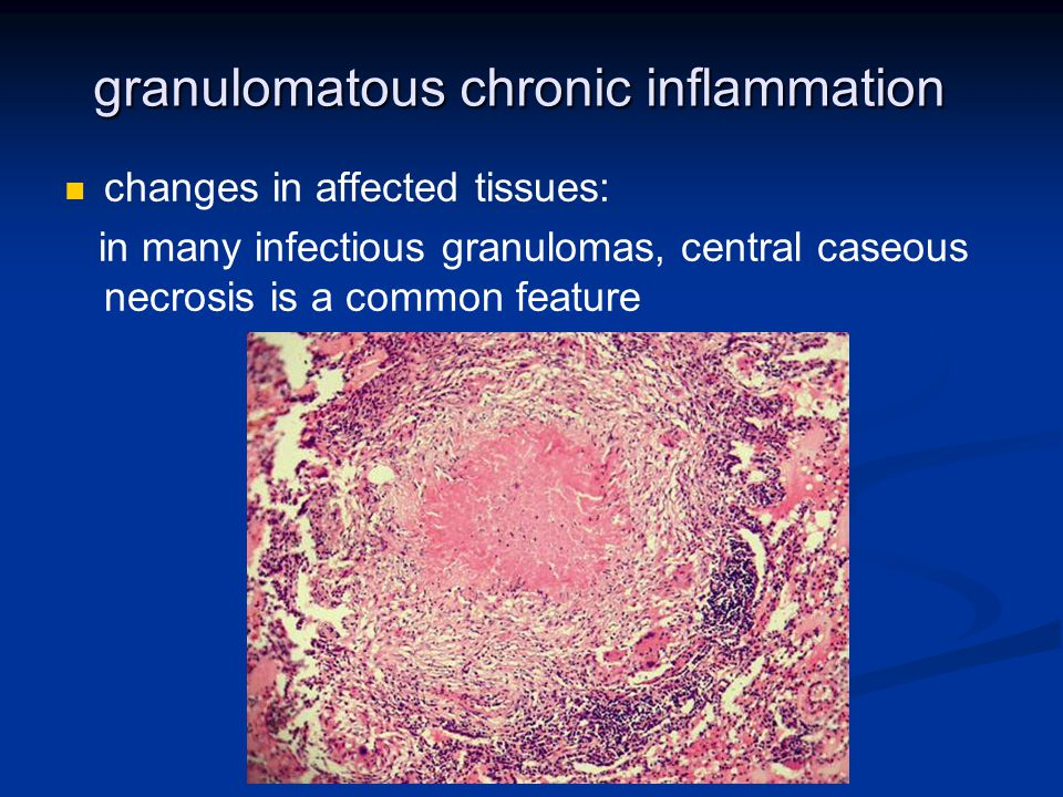 granulomatous chronic inflammation
