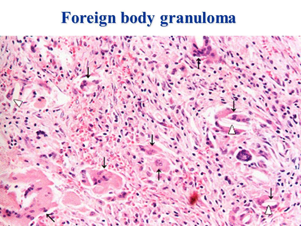 Foreign body granuloma