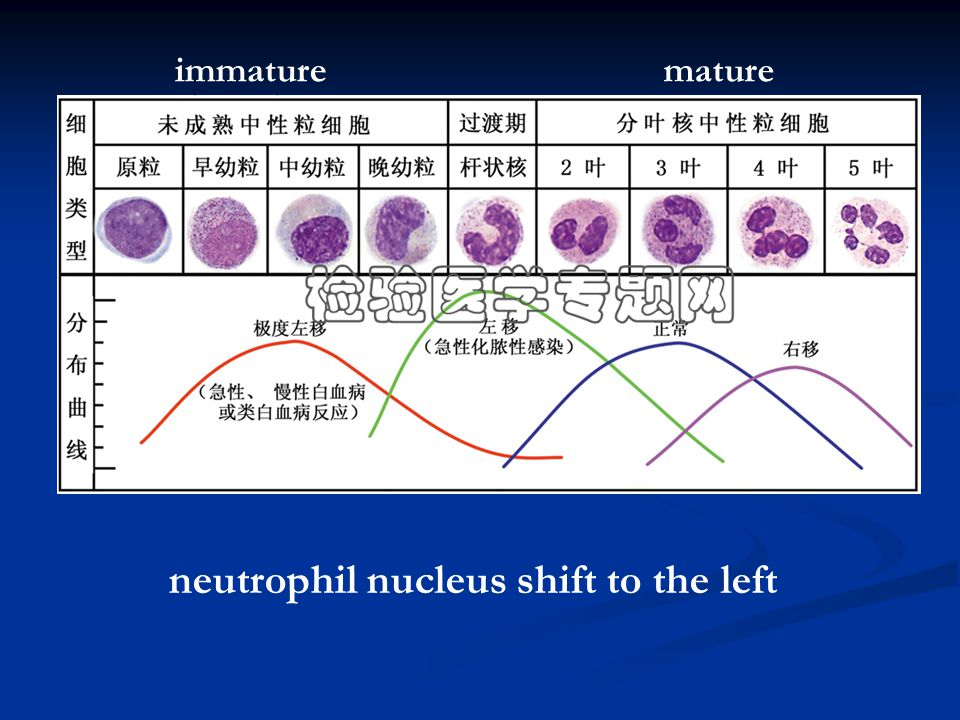 neutrophil nucleus shift to the left