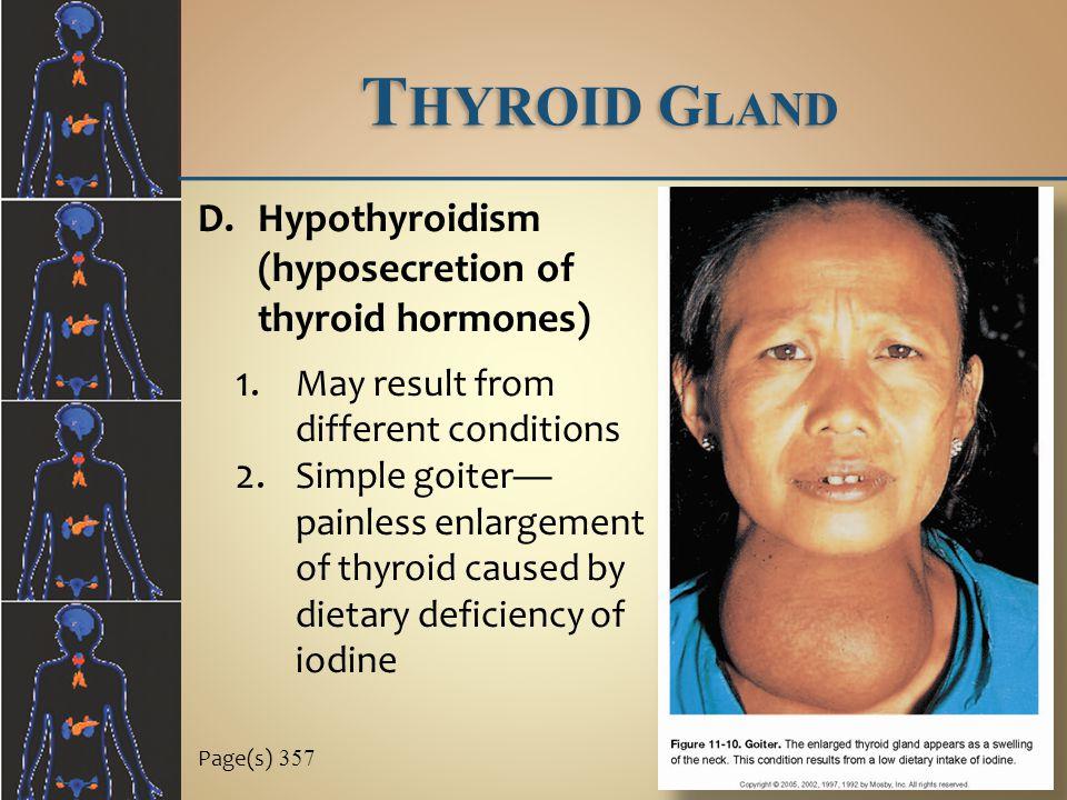 Thyroid Gland Hypothyroidism (hyposecretion of thyroid hormones)
