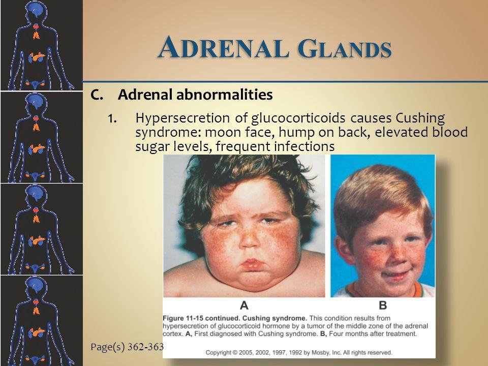 Adrenal Glands Adrenal abnormalities