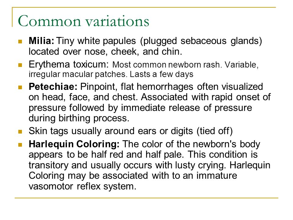 Common variations Milia: Tiny white papules (plugged sebaceous glands) located over nose, cheek, and chin.