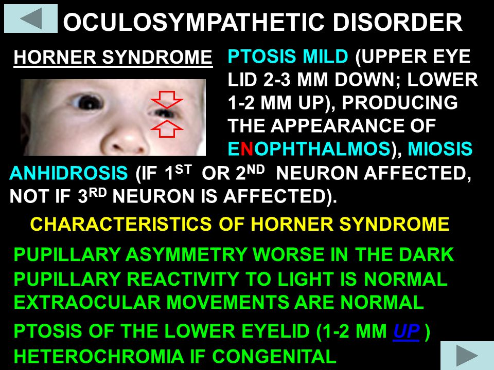 OCULOSYMPATHETIC DISORDER