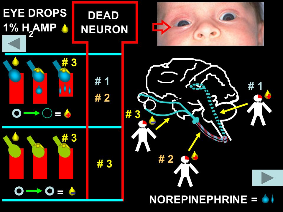 EYE DROPS DEAD 1% H AMP NEURON # 3 = # 1 # 1 # 2 # 3 # 3 # 2 # 3