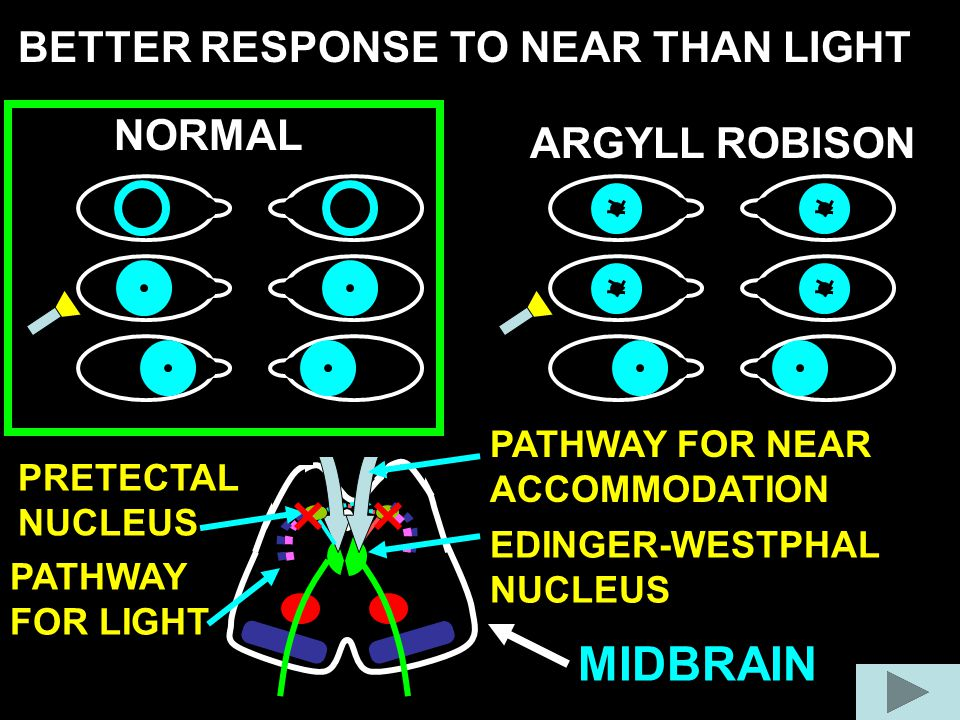 MIDBRAIN BETTER RESPONSE TO NEAR THAN LIGHT NORMAL ARGYLL ROBISON