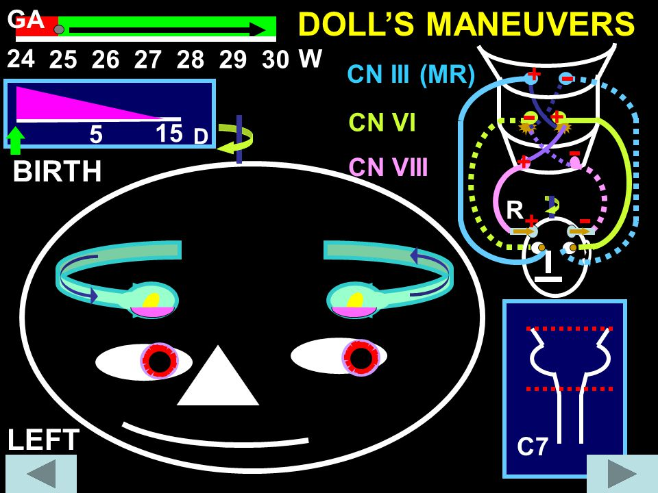 DOLL'S MANEUVERS BIRTH LEFT GA 24 25 26 27 28 29 30 W CN III (MR) + +