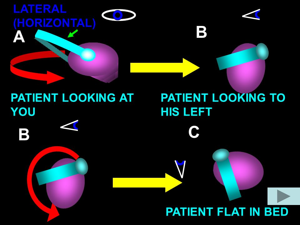 B A C B LATERAL (HORIZONTAL) PATIENT LOOKING AT YOU