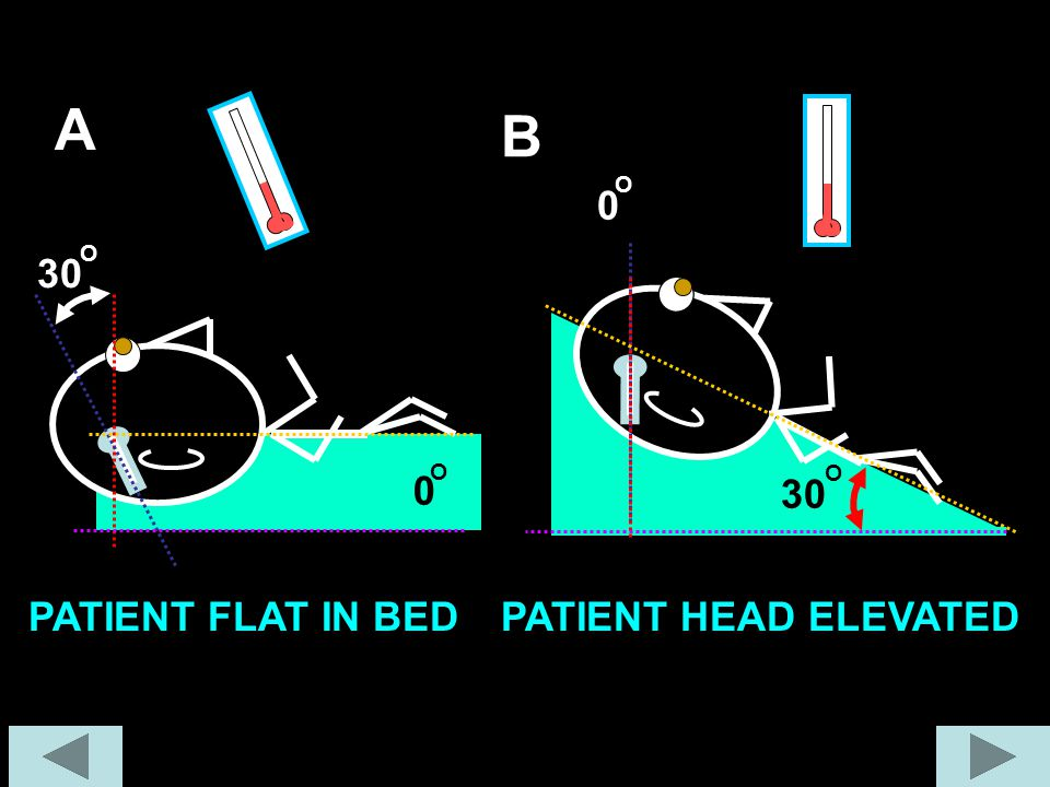 30 O A B PATIENT FLAT IN BED PATIENT HEAD ELEVATED