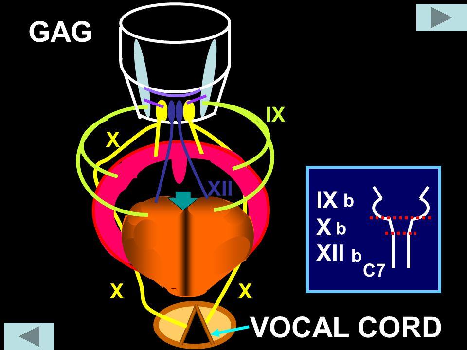 GAG IX X C7 X IX XII b XII X X VOCAL CORD