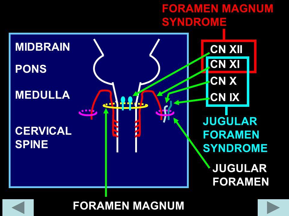 FORAMEN MAGNUM SYNDROME