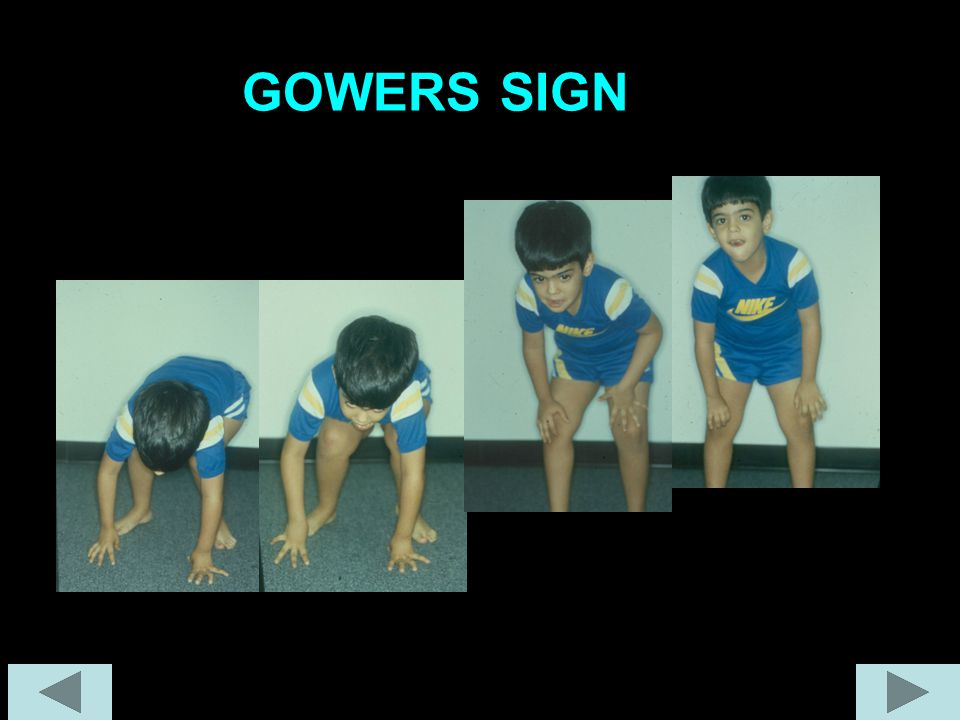 GOWERS SIGN
