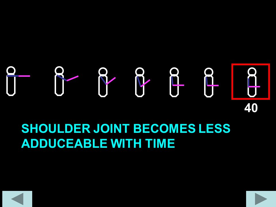40 SHOULDER JOINT BECOMES LESS ADDUCEABLE WITH TIME