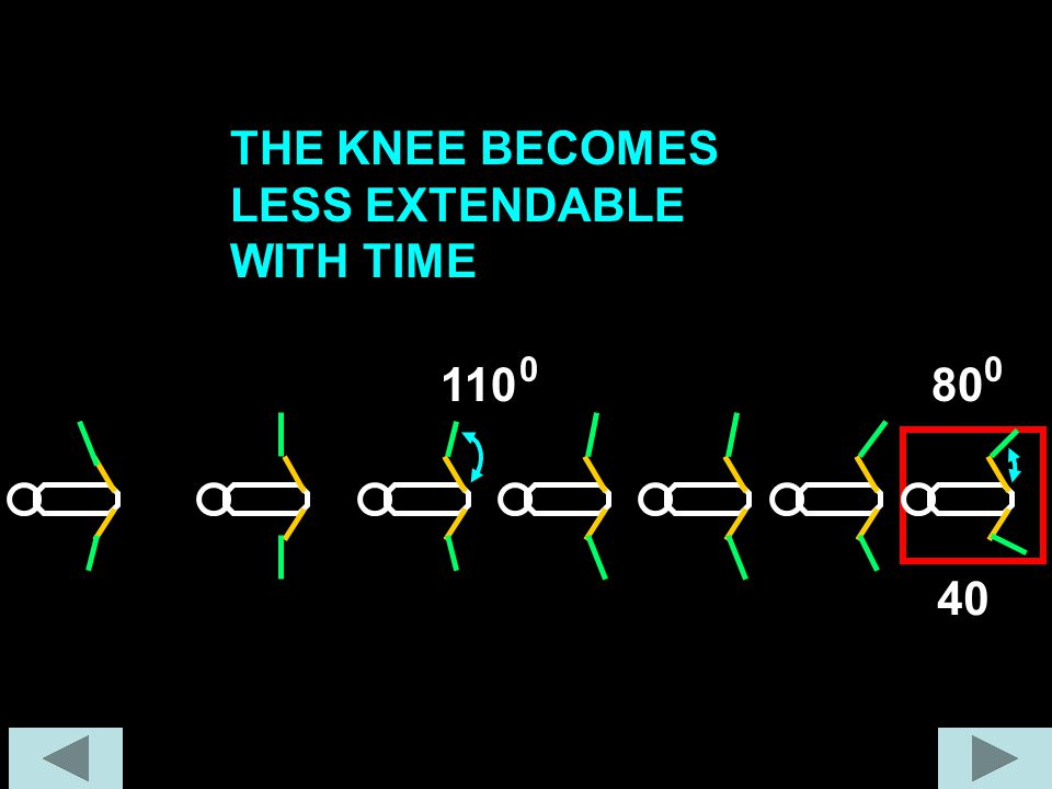 THE KNEE BECOMES LESS EXTENDABLE WITH TIME