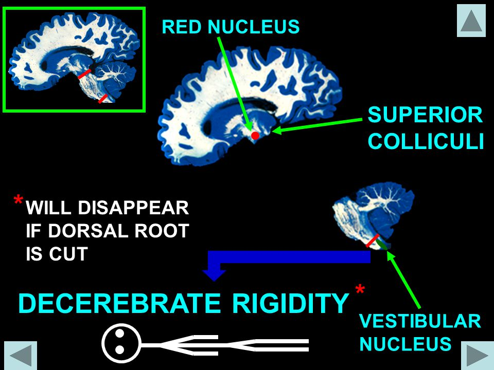 * * DECEREBRATE RIGIDITY SUPERIOR COLLICULI RED NUCLEUS