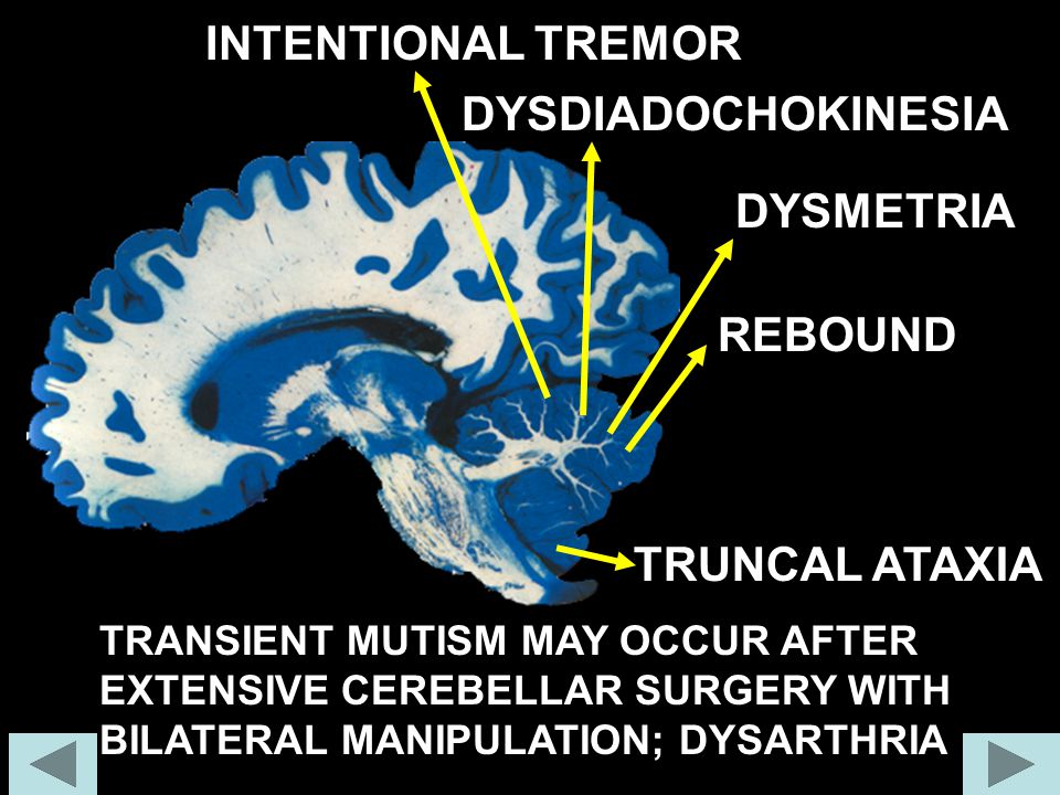 INTENTIONAL TREMOR DYSDIADOCHOKINESIA DYSMETRIA REBOUND TRUNCAL ATAXIA