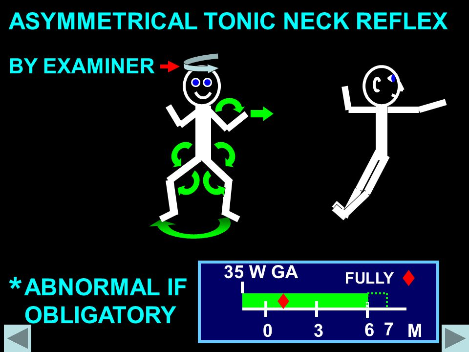 * ASYMMETRICAL TONIC NECK REFLEX ABNORMAL IF OBLIGATORY BY EXAMINER