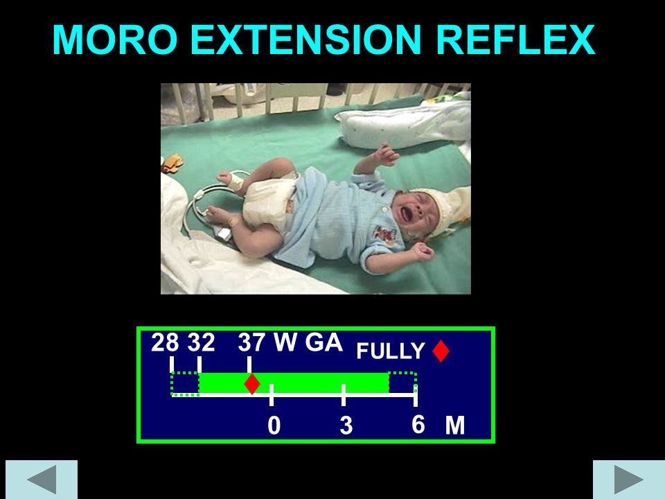 MORO EXTENSION REFLEX 28 32 37 W GA FULLY 3 6 M
