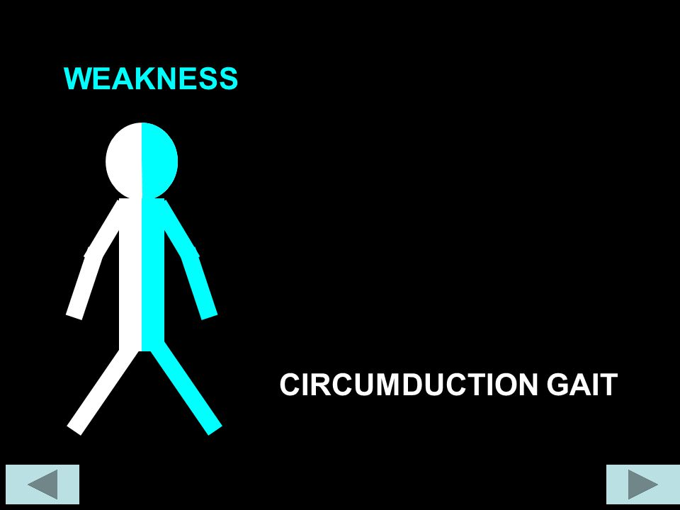 WEAKNESS CIRCUMDUCTION GAIT