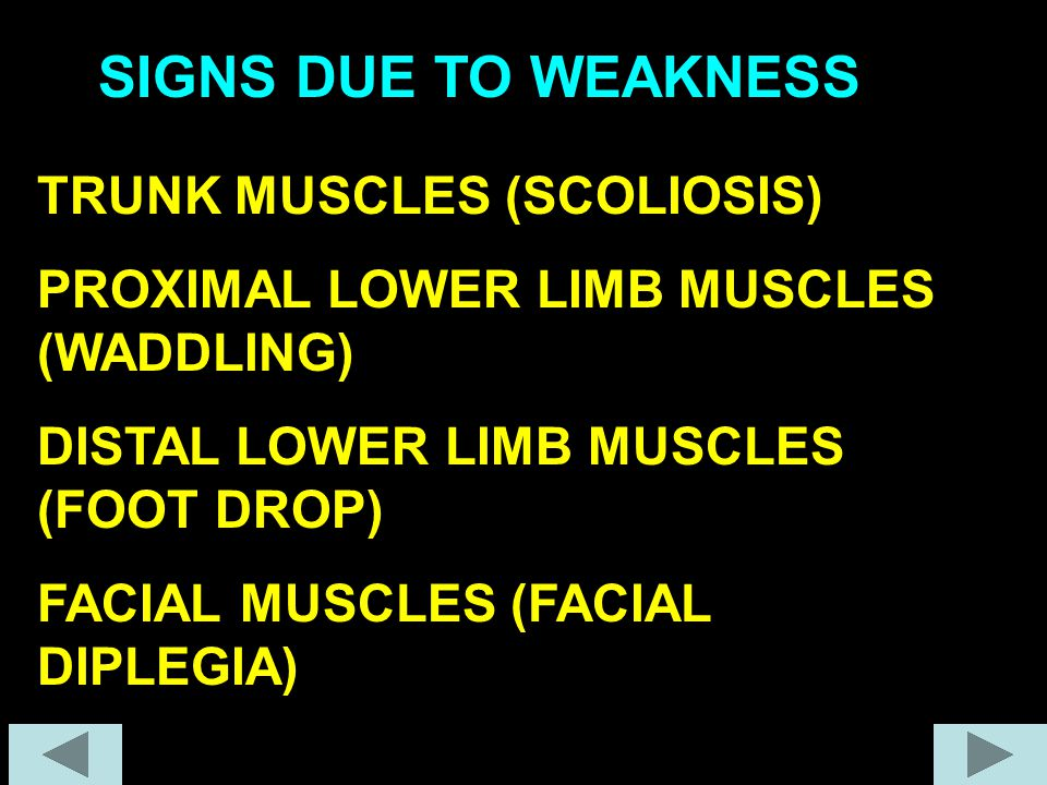 SIGNS DUE TO WEAKNESS TRUNK MUSCLES (SCOLIOSIS)