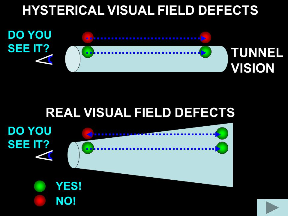 HYSTERICAL VISUAL FIELD DEFECTS