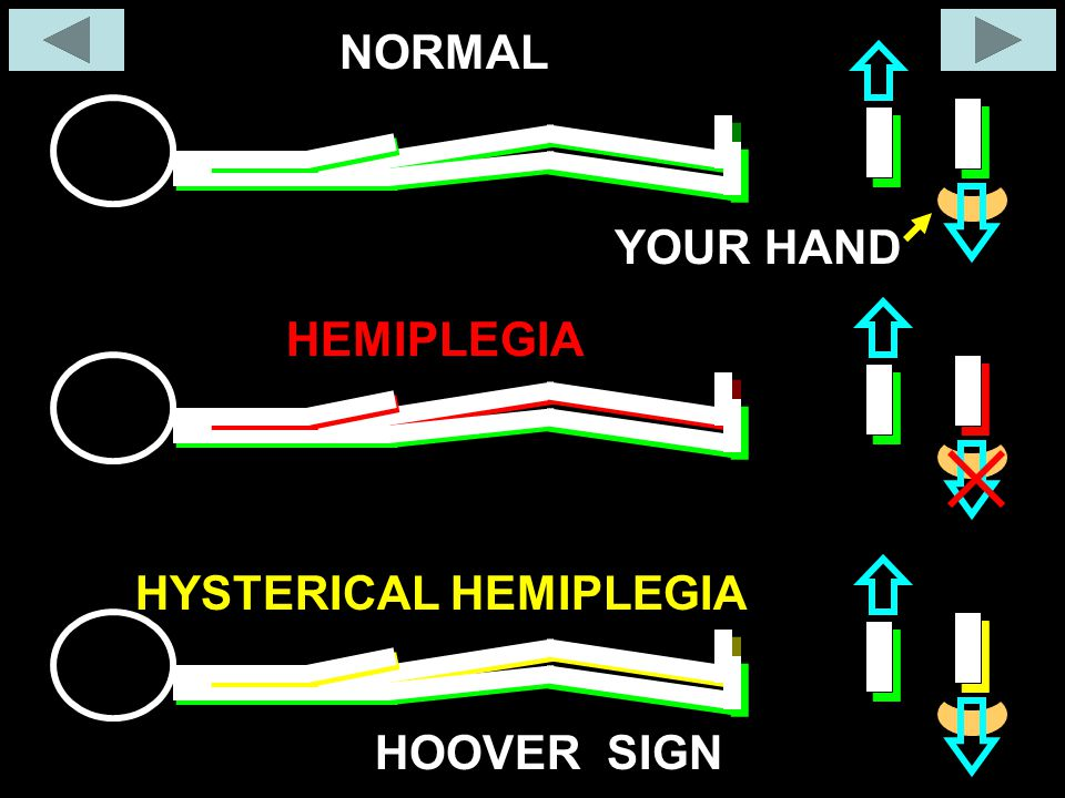 NORMAL YOUR HAND HEMIPLEGIA HYSTERICAL HEMIPLEGIA HOOVER SIGN