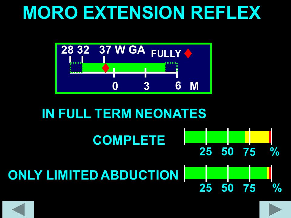 MORO EXTENSION REFLEX IN FULL TERM NEONATES COMPLETE