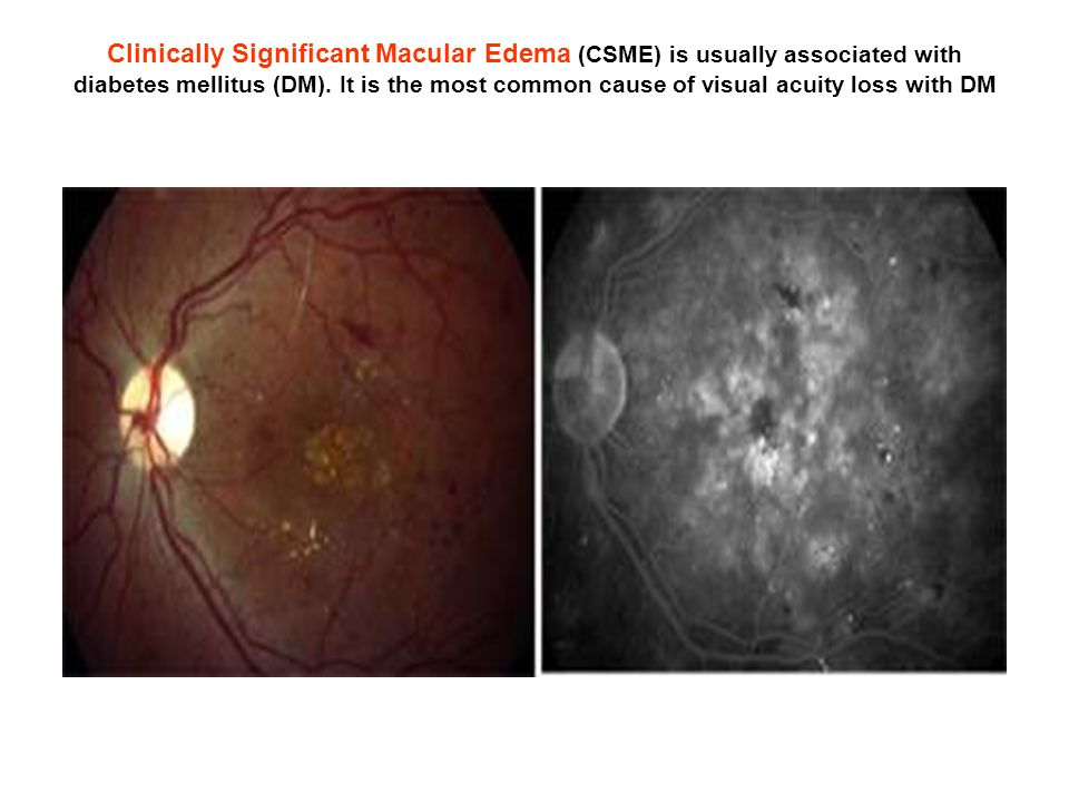 Clinically Significant Macular Edema (CSME) is usually associated with diabetes mellitus (DM).