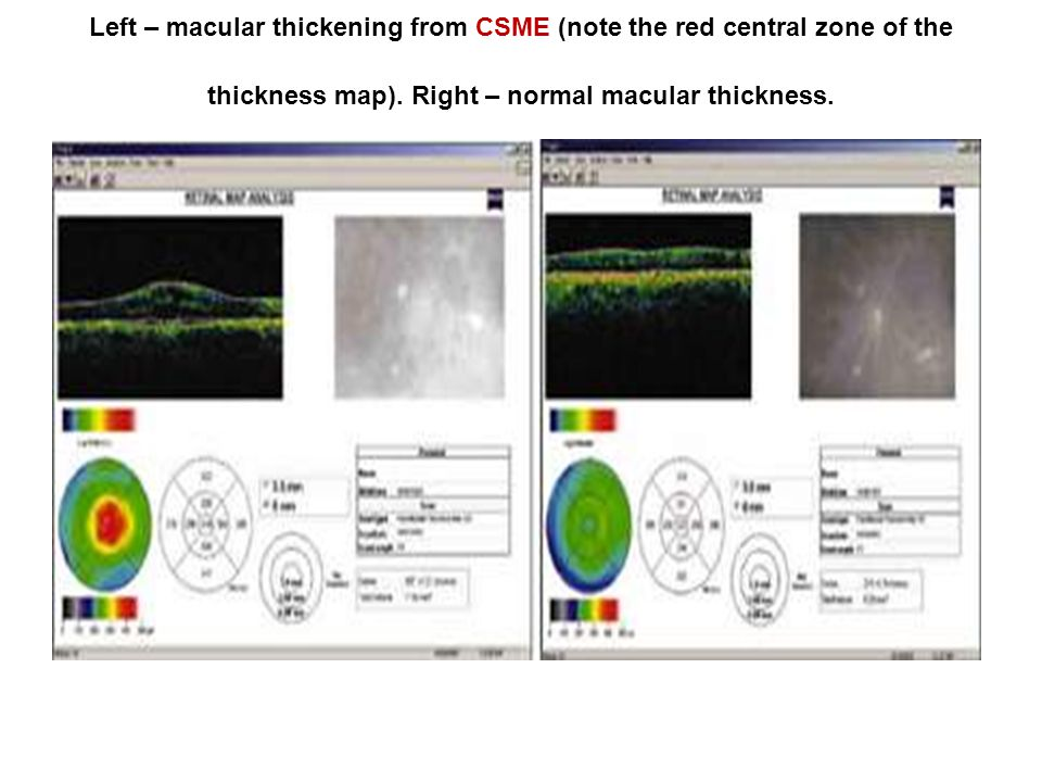 Left – macular thickening from CSME (note the red central zone of the thickness map).